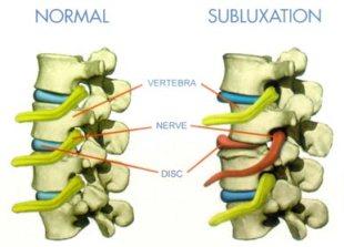 subluxation2
